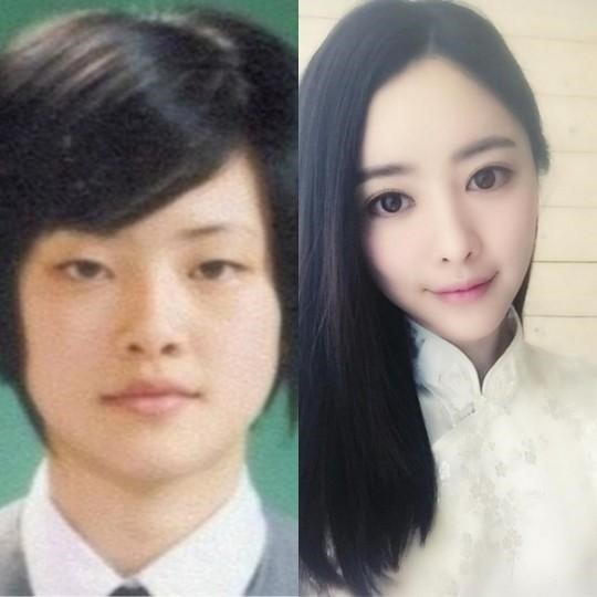 Top 7 Korean Actors Admitted Plastic Surgery . 2